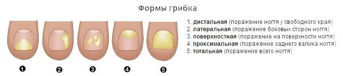 Формы грибка ногтей на ногах