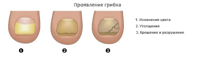 Проявление грибка ногтей на ногах