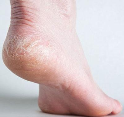 Сухость кожи стопы