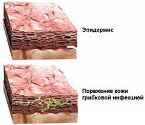 Эпидермис