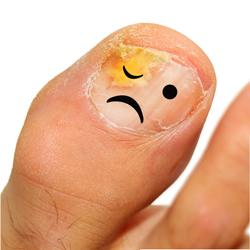 палец с грибком ногтя